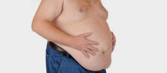 ObesidadMorbida1