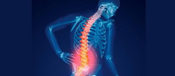 Ilustración de esqueleto, a manera de radiografía