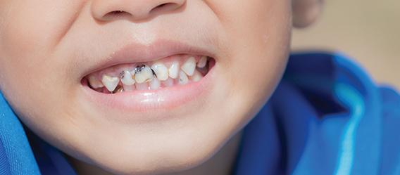 Caries en dientes frontales de un niño